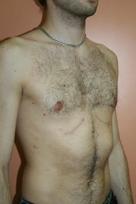 Подтяжка груди отзывы одесса