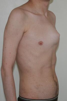 Рис. 8. Внешний вид больного с килевидной деформацией грудной клетки.
